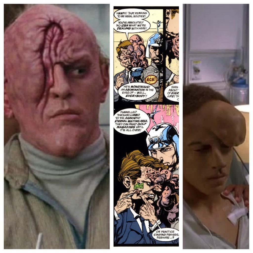 Dean Norris como o mutante de Marte, o engravatado de Lobo está Morto e Kenny Cyrus em House.